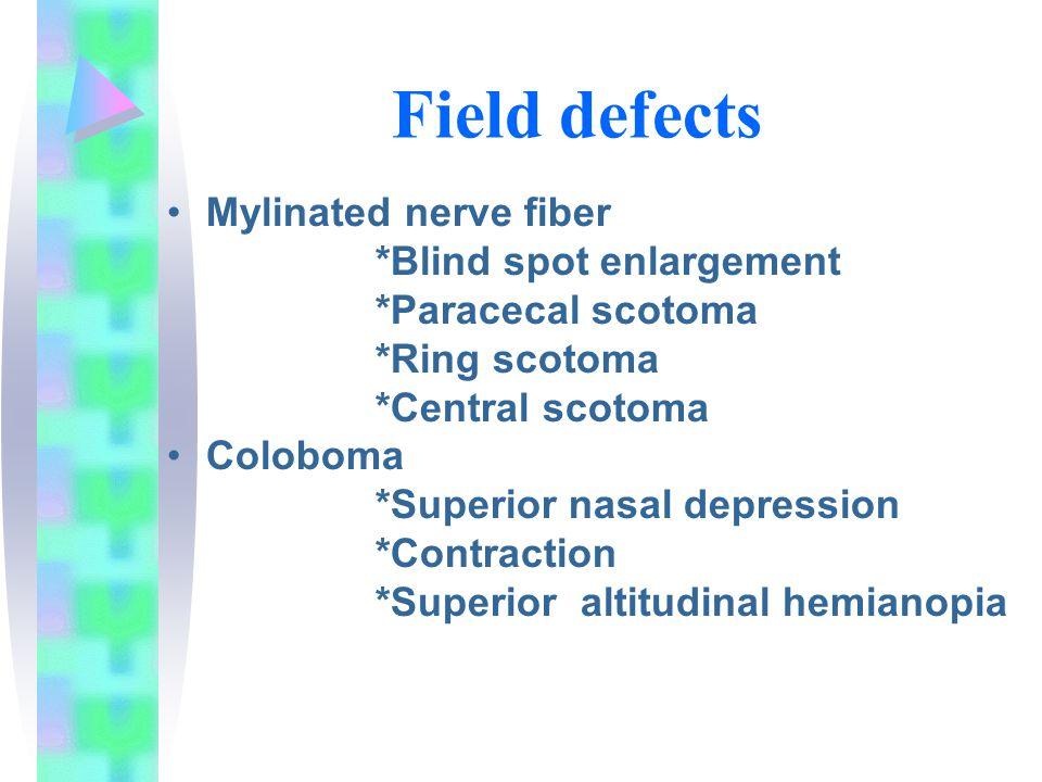 blind spot enlargement Objective: to describe the clinical findings in patients with acute idiopathic blind spot enlargement (aibse) methods: medical record review of 27 patients with aibse (without sufficient optic nerve head swelling to cause blind spot enlargement) seen in 2 academic neuroophthalmology units.