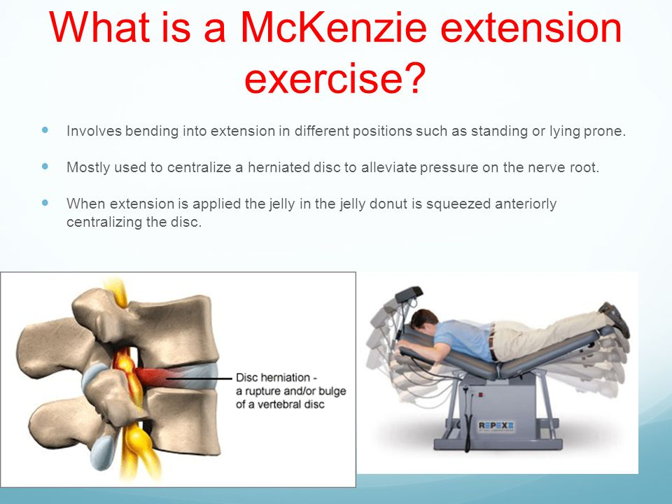 McKenzie Extension Exercises - ppt download