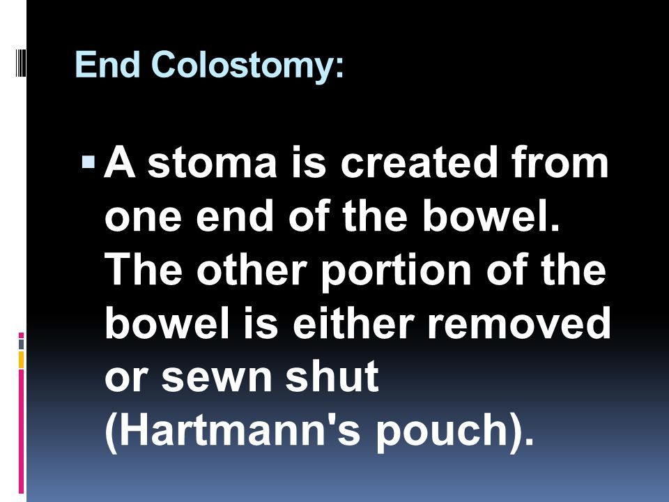 End Colostomy: A stoma is created from one end of the bowel.