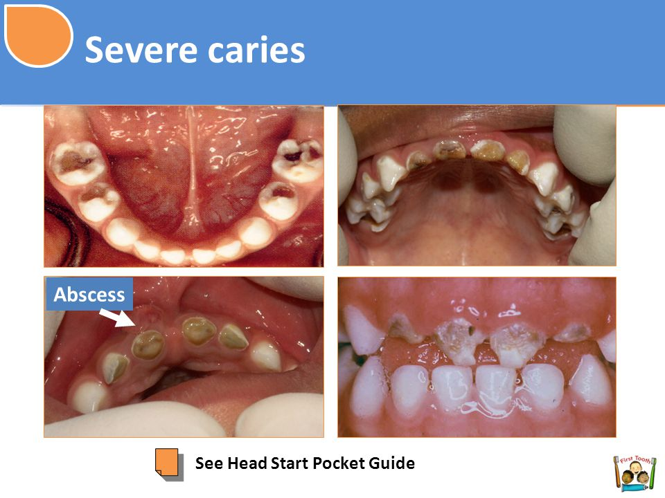 Severe caries Abscess See Head Start Pocket Guide