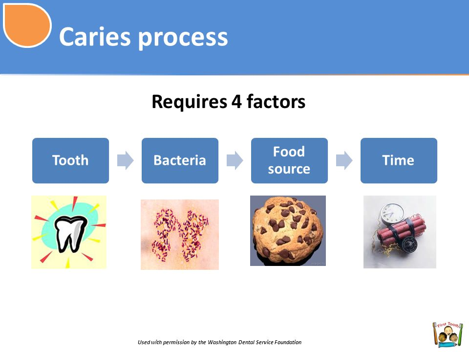 Caries process Requires 4 factors Tooth Bacteria Food source Time