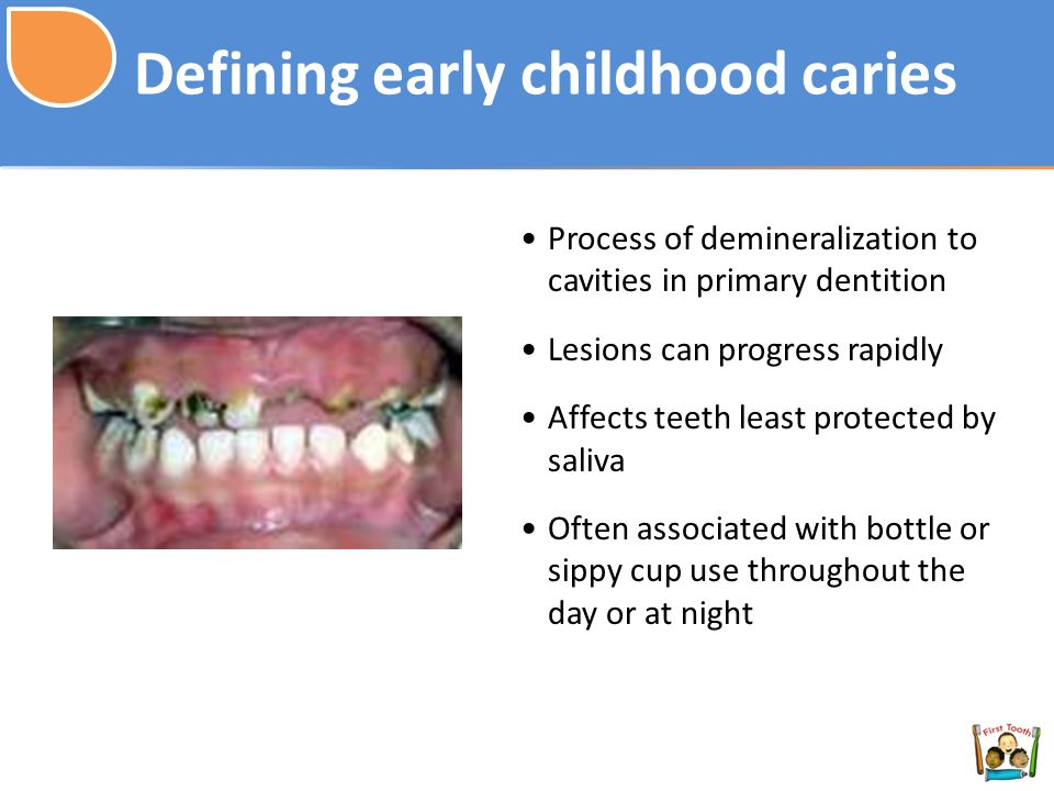 Defining early childhood caries