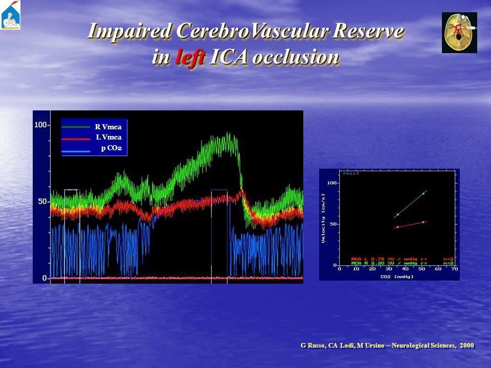 Impaired CerebroVascular Reserve in left ICA occlusion