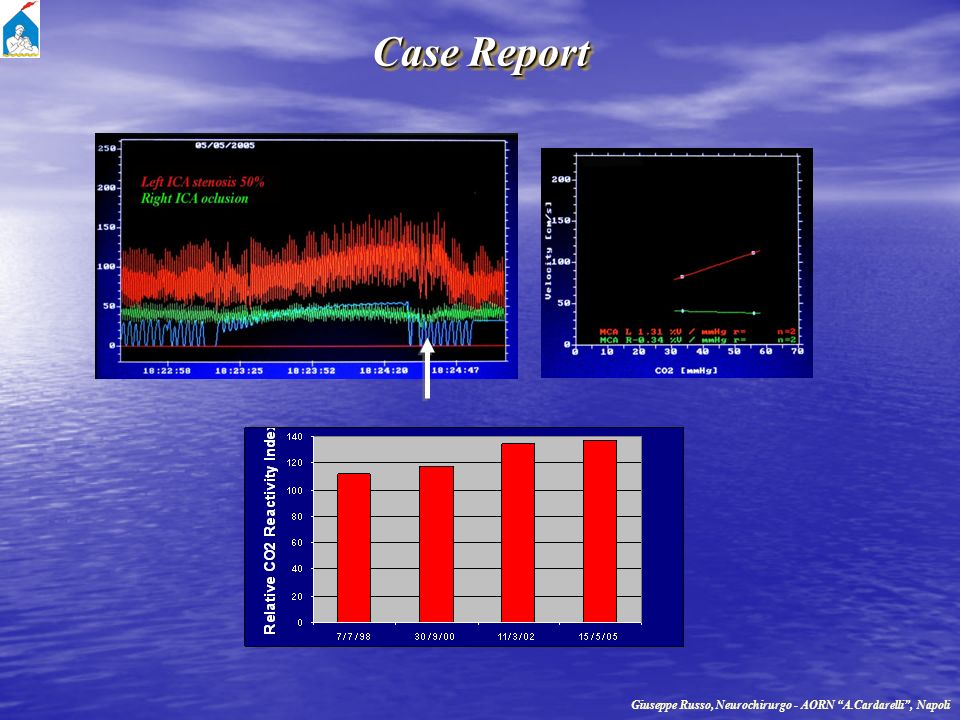Case Report Giuseppe Russo, Neurochirurgo - AORN A.Cardarelli , Napoli