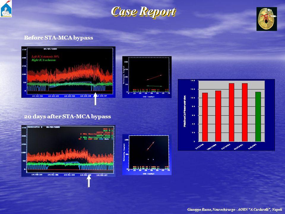 Case Report Before STA-MCA bypass 20 days after STA-MCA bypass
