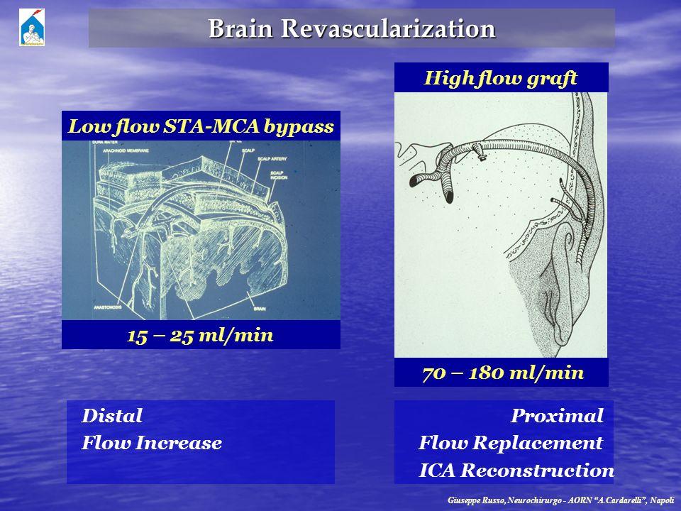 Brain Revascularization