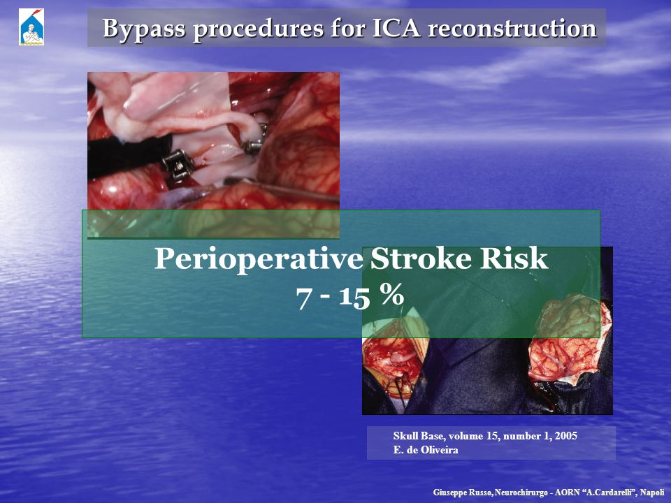 Bypass procedures for ICA reconstruction Perioperative Stroke Risk