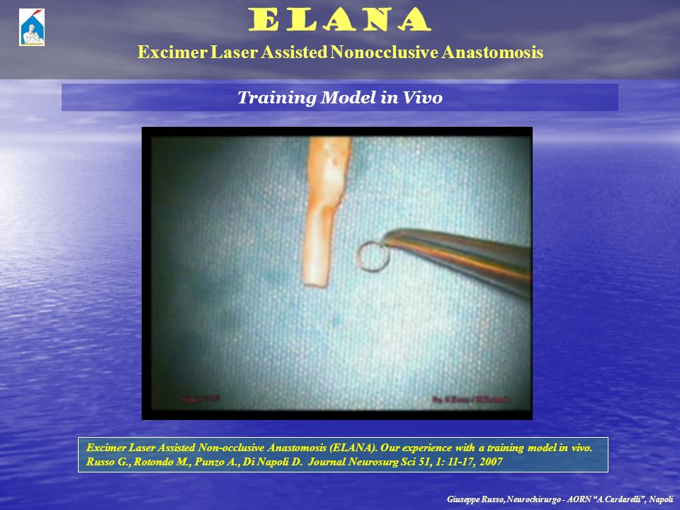 Excimer Laser Assisted Nonocclusive Anastomosis