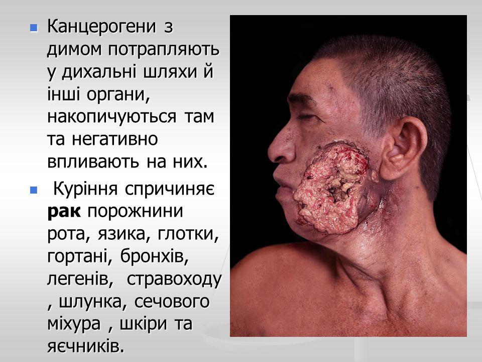 Канцерогени з димом потрапляють у дихальні шляхи й інші органи, накопичуються там та негативно впливають на них.