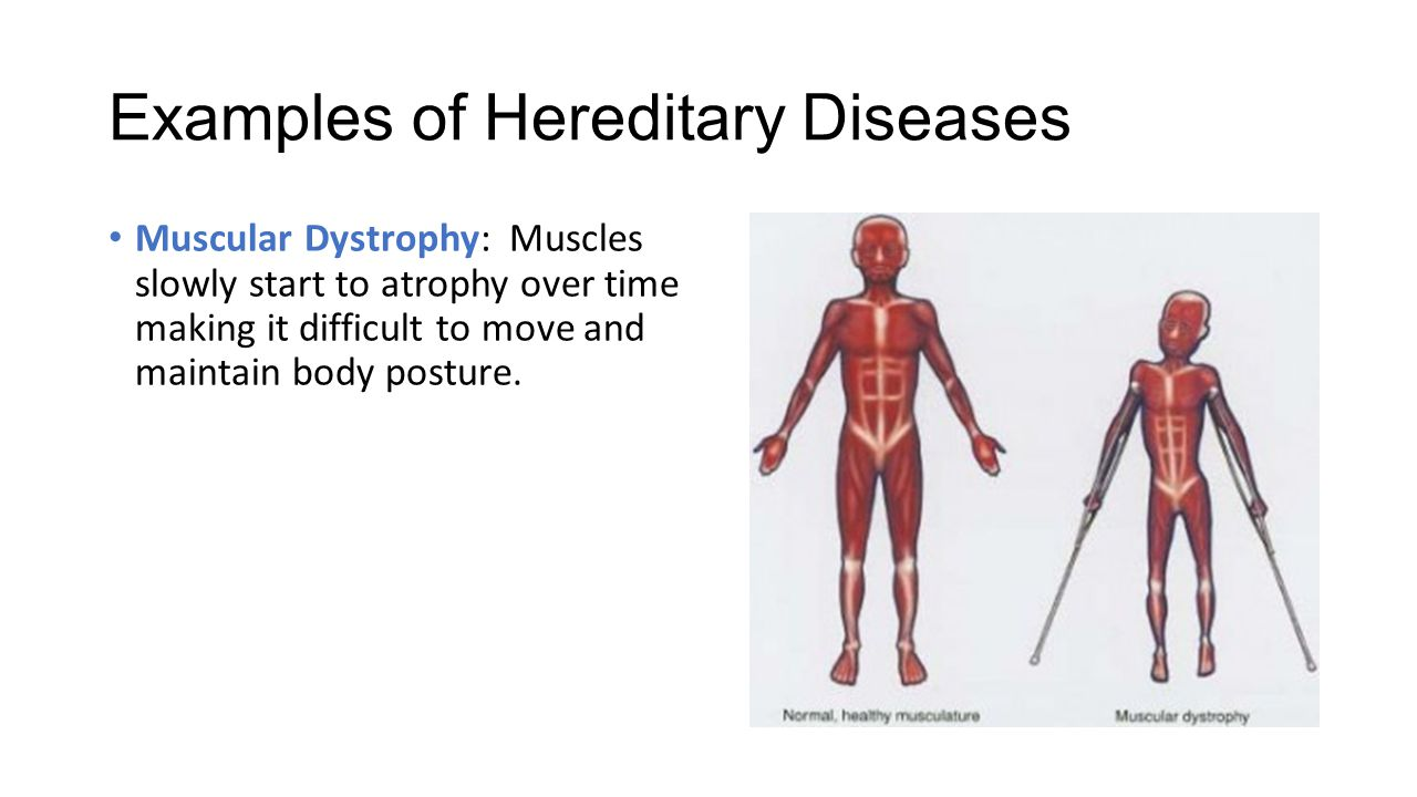 hereditary diseases Diagnosis of genetic disease is sometimes clinical, based on the presence of a   potentially die and that there is nothing they or anyone else can do to stop it.