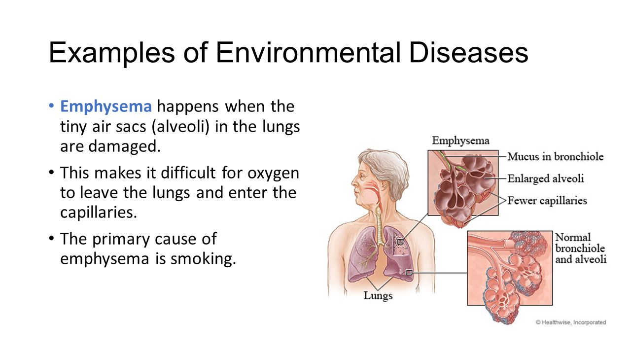 Non Infectious Diseases Ppt Video Online Download