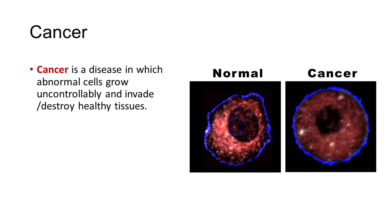 Can abnormal cells come back after you have the treatment ...