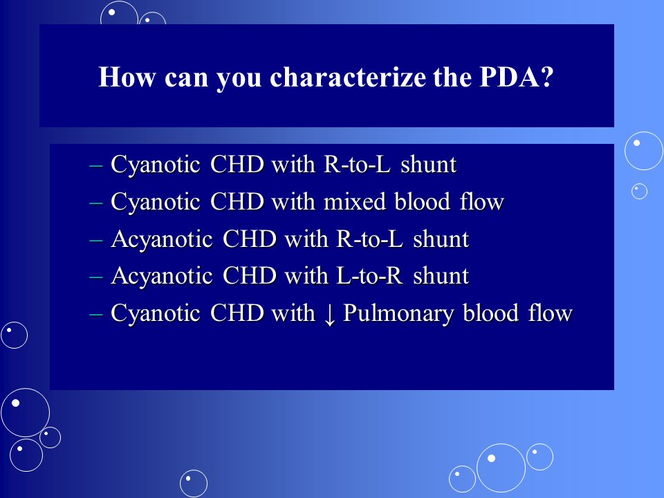 How can you characterize the PDA