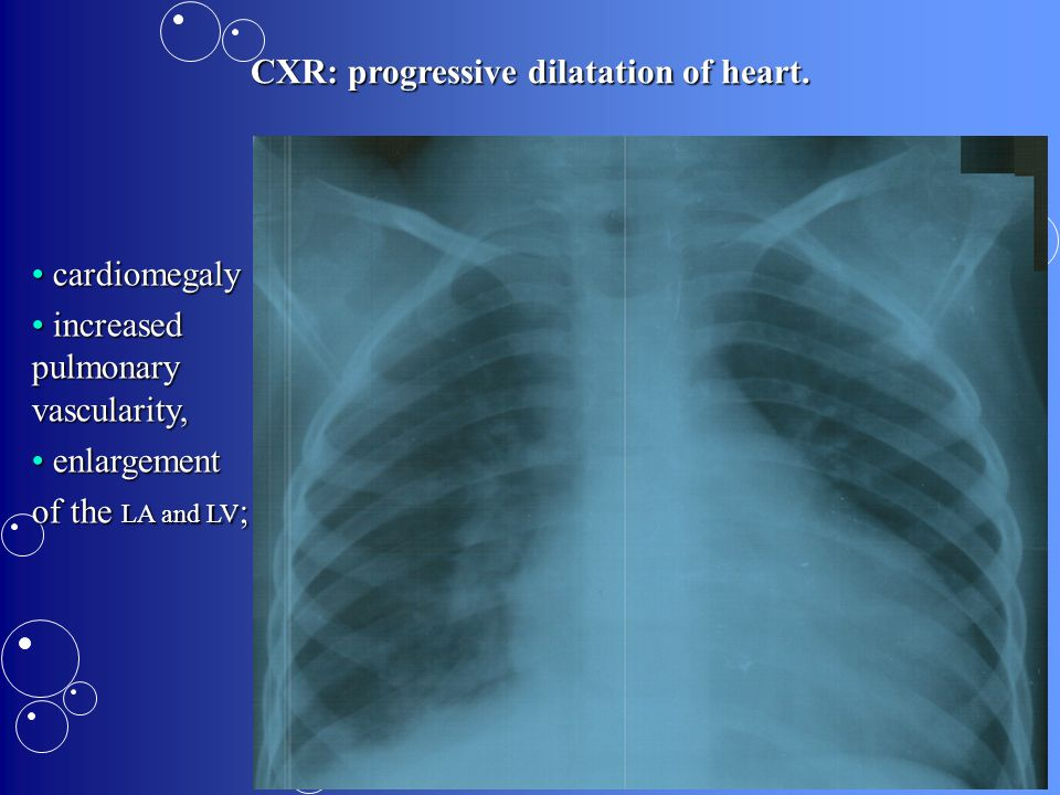 CXR: progressive dilatation of heart.