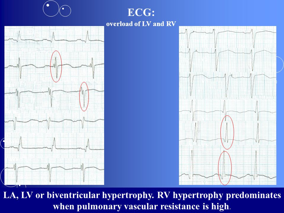 ECG: overload of LV and RV. І. ІІ. ІІІ. AVR. AVL. AVF. V1. V2. V3. V4. V5. V6.
