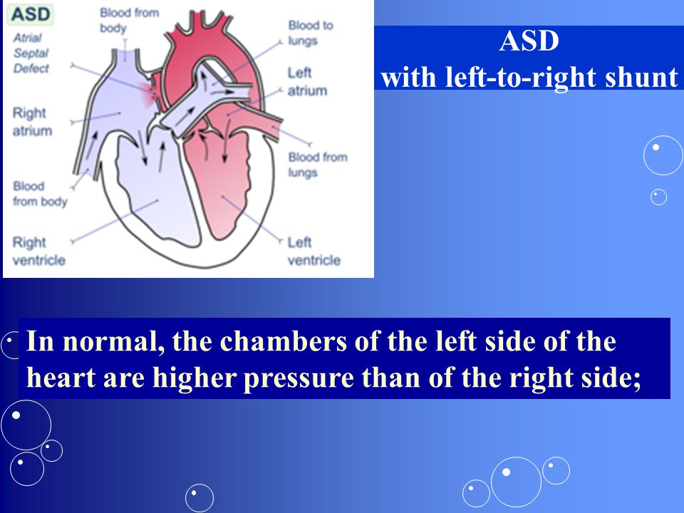 ASD with left-to-right shunt