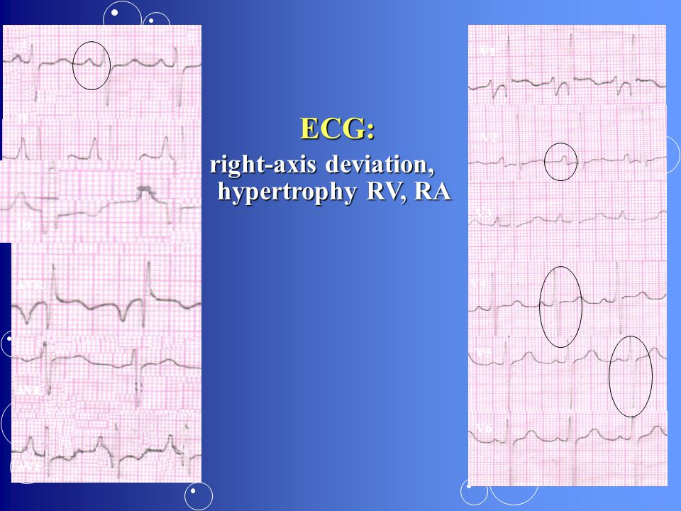 right-axis deviation, hypertrophy RV, RA