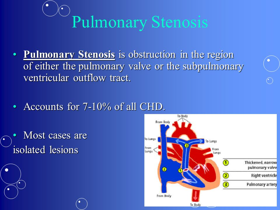 Pulmonary Stenosis Pulmonary Stenosis is obstruction in the region of either the pulmonary valve or the subpulmonary ventricular outflow tract.