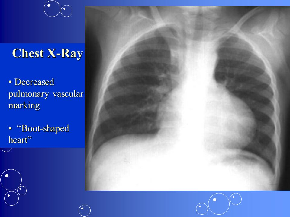 Chest X-Ray Decreased pulmonary vascular marking Boot-shaped heart