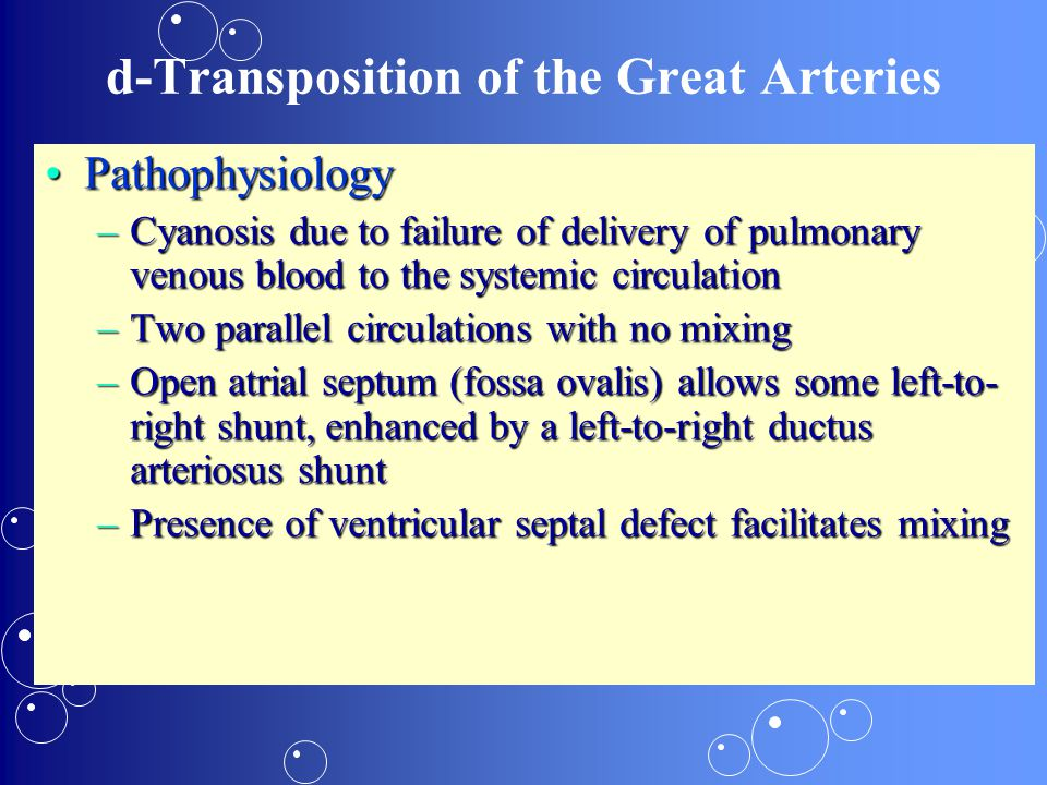 d-Transposition of the Great Arteries