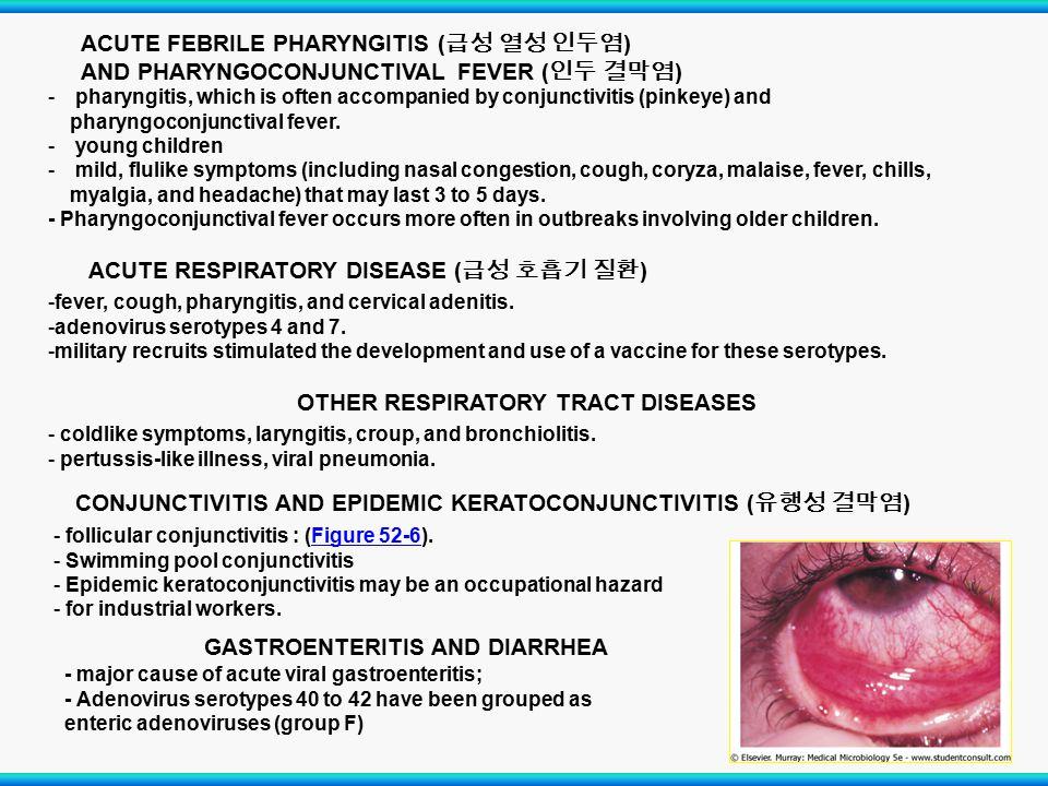 ACUTE FEBRILE PHARYNGITIS (급성 열성 인두염)