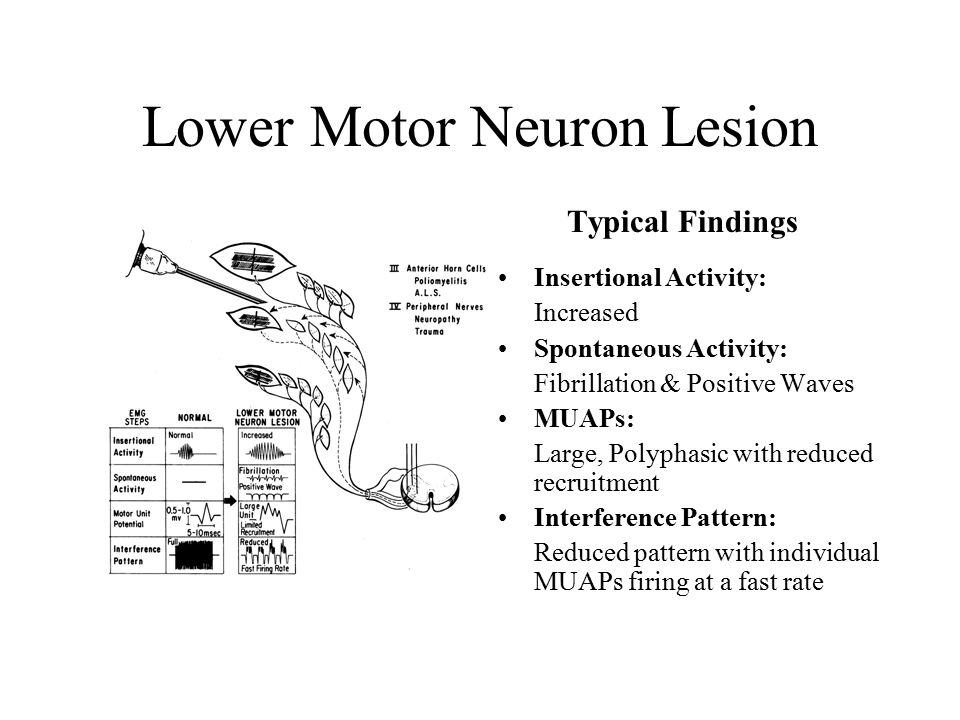 Emg theory of ncs emg ppt video online download for Lower motor neuron diseases