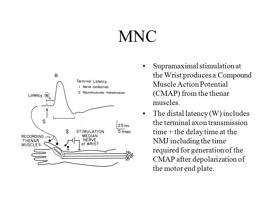 theory of electromyography Facial electromyography (emg) allows researchers to measure these minute electrical changes in muscle activation  as well as cognitive averaging theory.