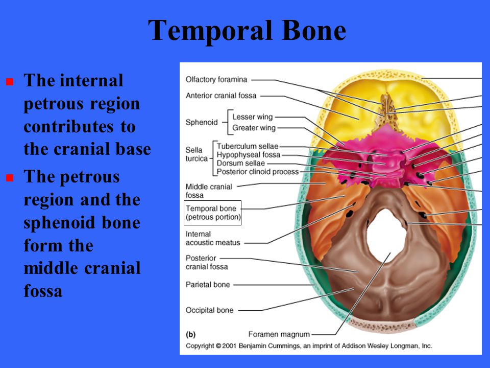 Internal auditory meatus anatomy