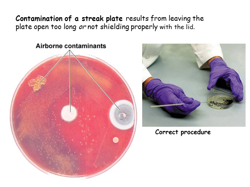 Contamination of a streak plate results from leaving the plate open too long or not shielding properly with the lid.
