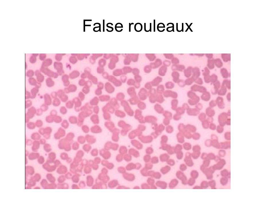 False rouleaux