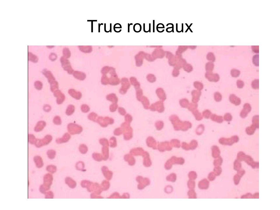 True rouleaux