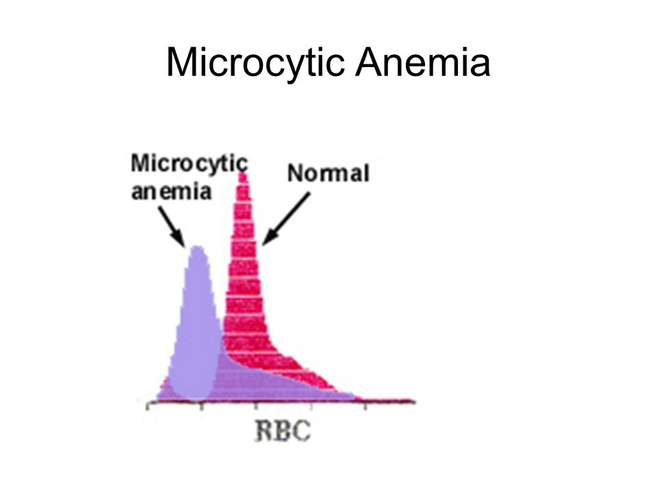 Microcytic Anemia