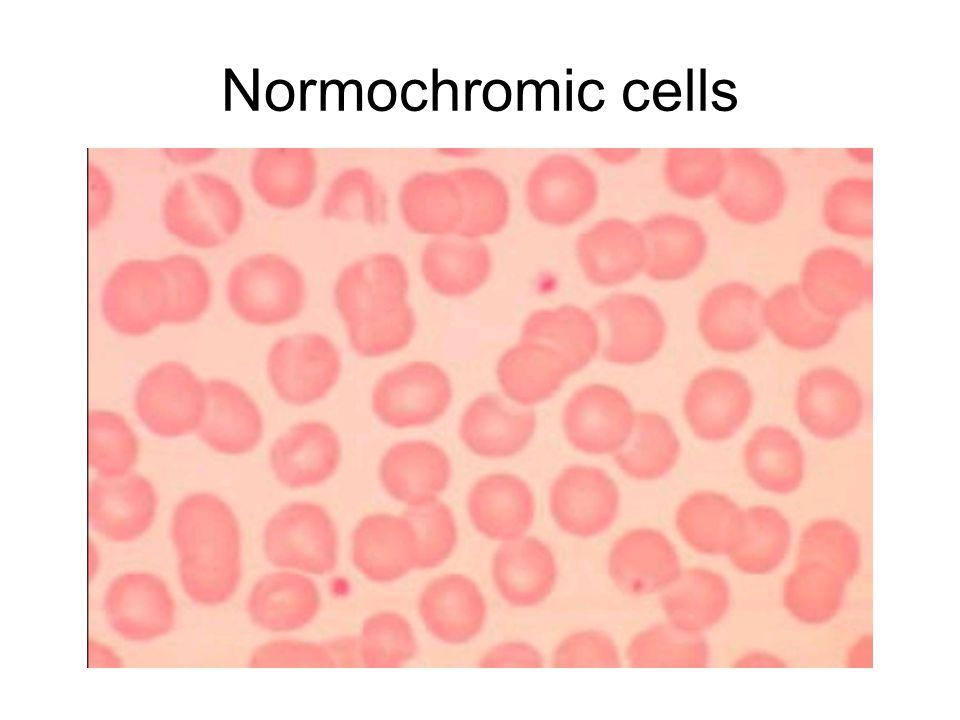Normochromic cells