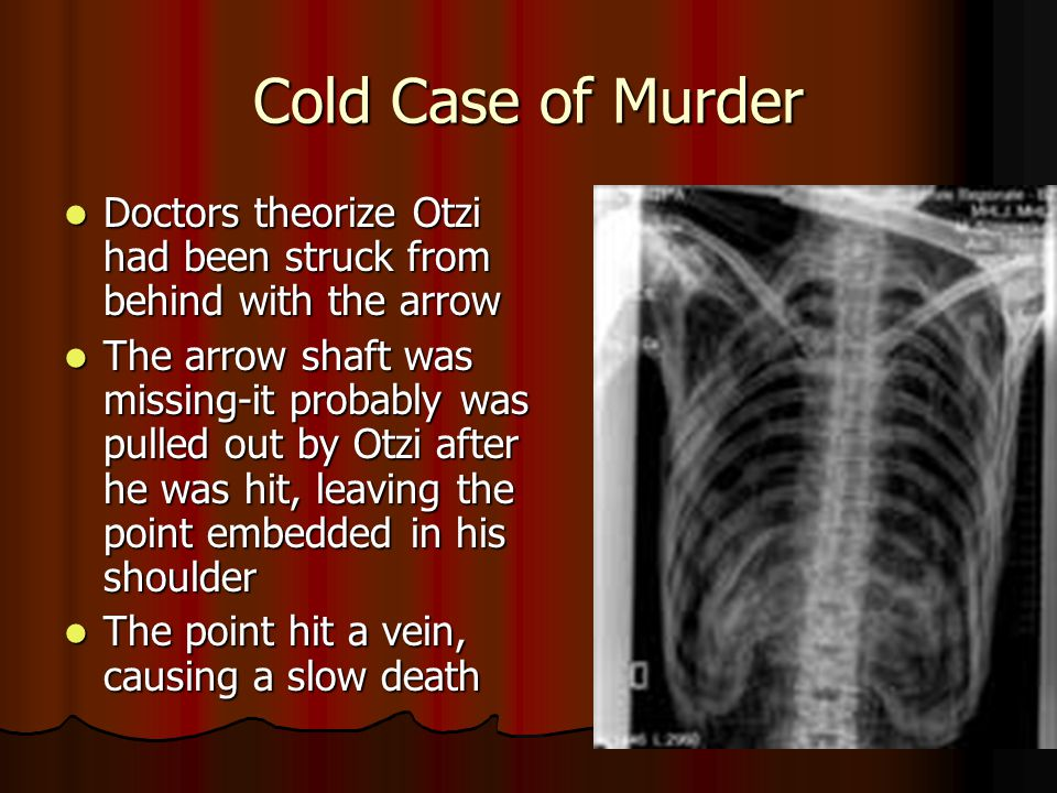 Cold Case of Murder Doctors theorize Otzi had been struck from behind with the arrow.
