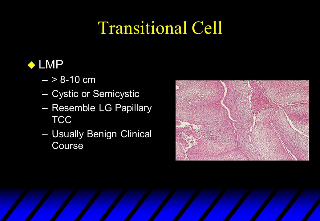 Transitional Cell LMP > 8-10 cm Cystic or Semicystic