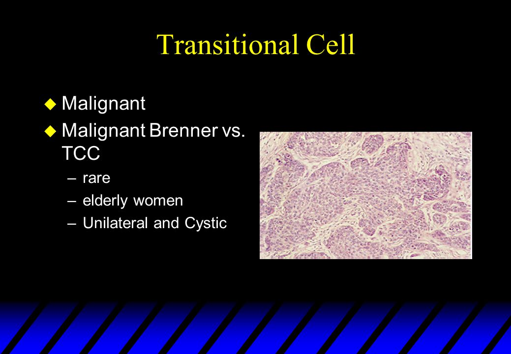 Transitional Cell Malignant Malignant Brenner vs. TCC rare