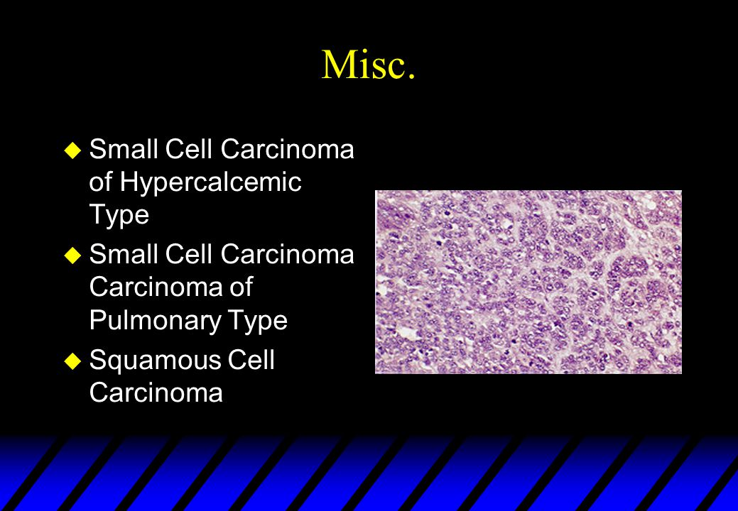 Misc. Small Cell Carcinoma of Hypercalcemic Type