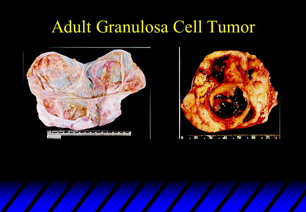 Adult Granulosa Cell Tumor