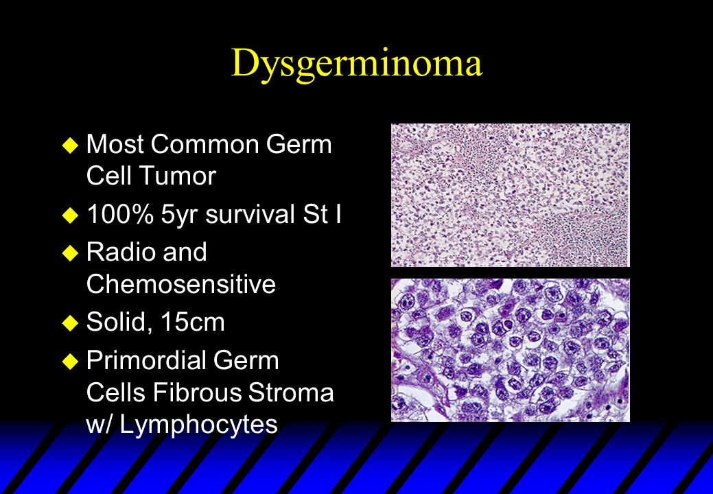 Dysgerminoma Most Common Germ Cell Tumor 100% 5yr survival St I