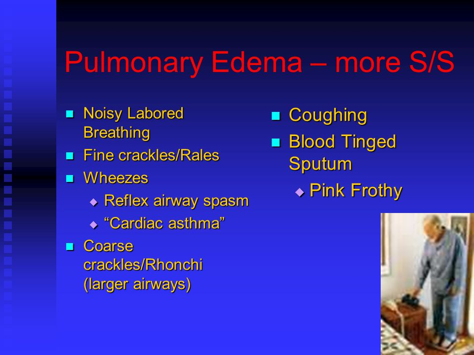 Pulmonary congestion and rales vs crackles