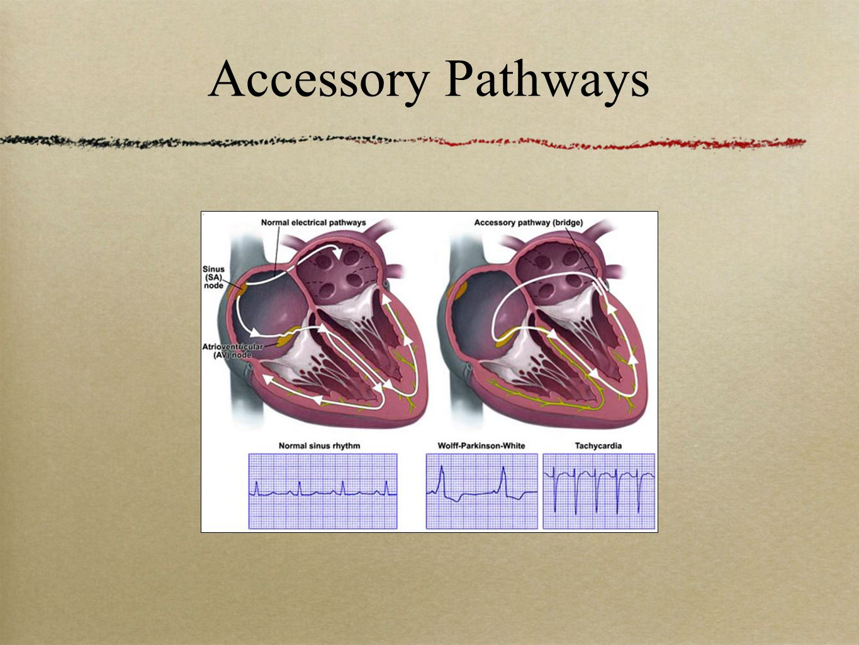 wolff-parkinson-white and atrioventricular  av  heart blocks