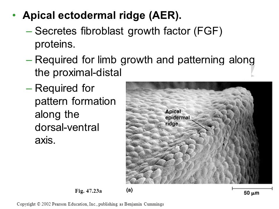 Apical ectodermal ridge (AER).