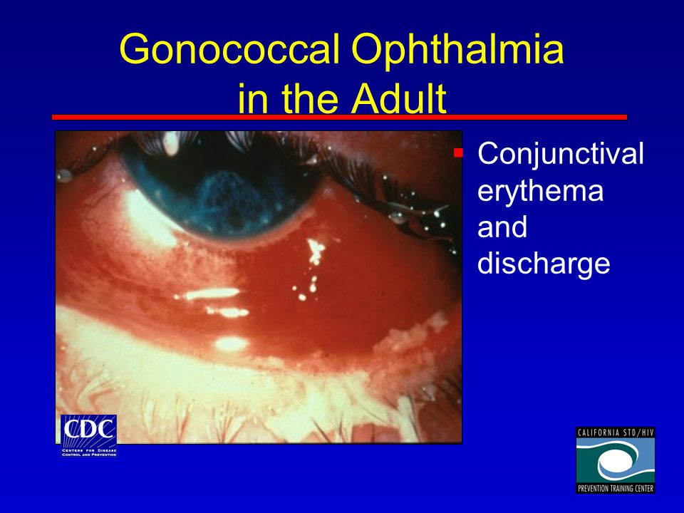 Gonococcal Ophthalmia in the Adult