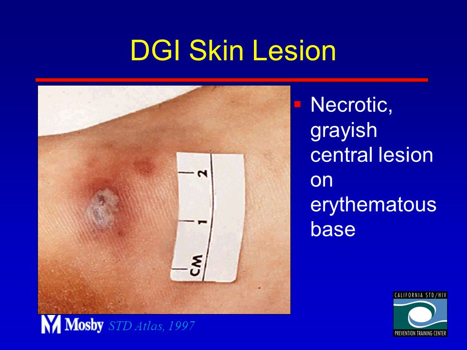 DGI Skin Lesion Necrotic, grayish central lesion on erythematous base