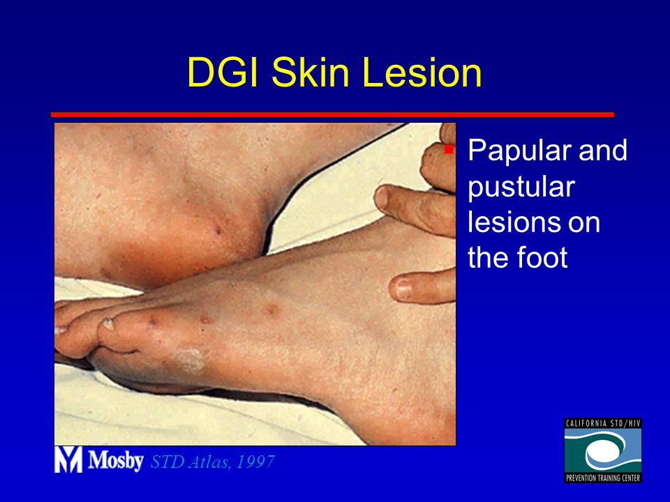 DGI Skin Lesion Papular and pustular lesions on the foot