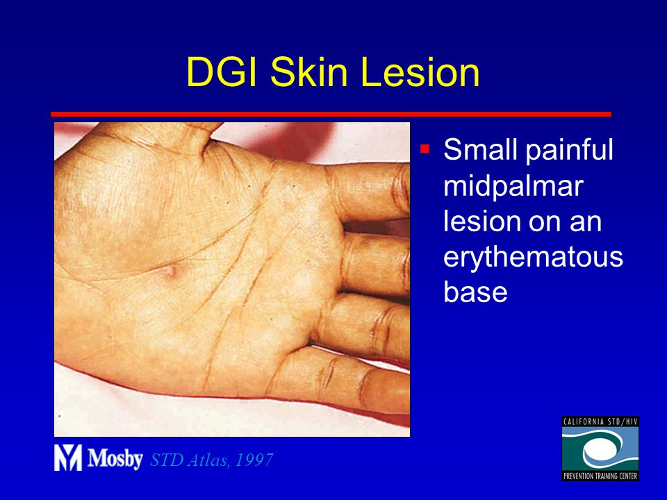DGI Skin Lesion Small painful midpalmar lesion on an erythematous base