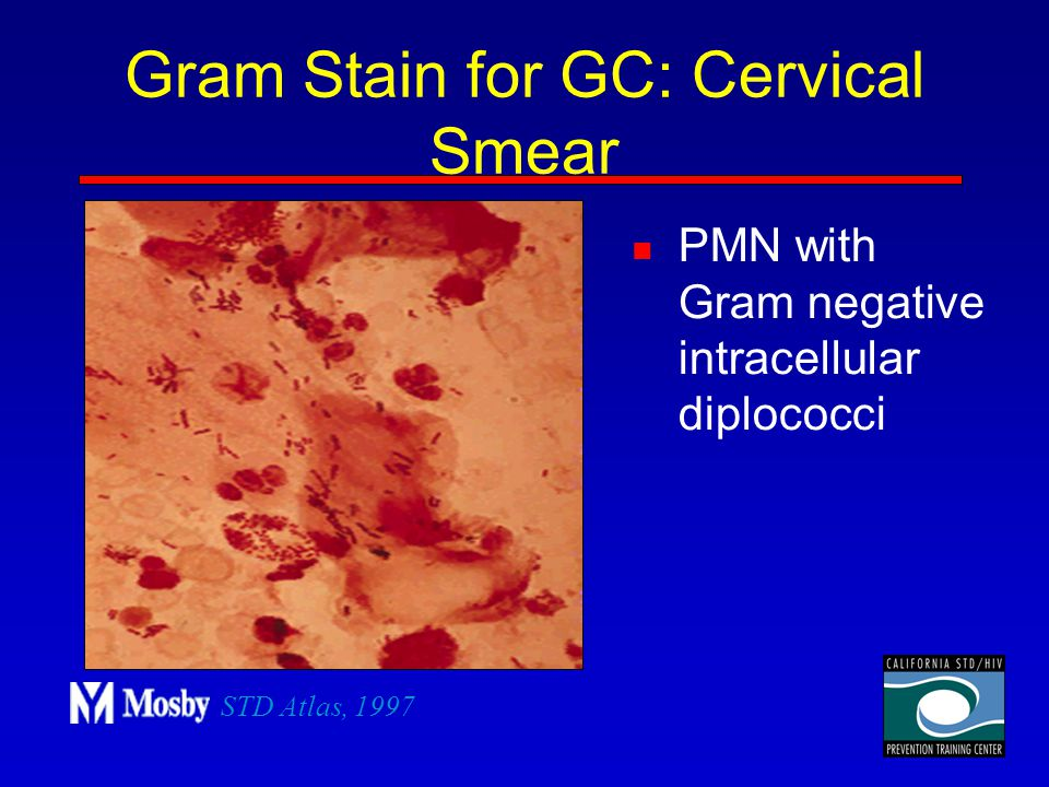 Gram Stain for GC: Cervical Smear