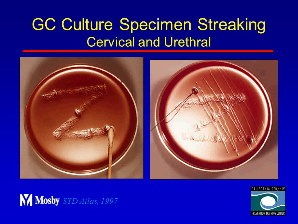 GC Culture Specimen Streaking Cervical and Urethral