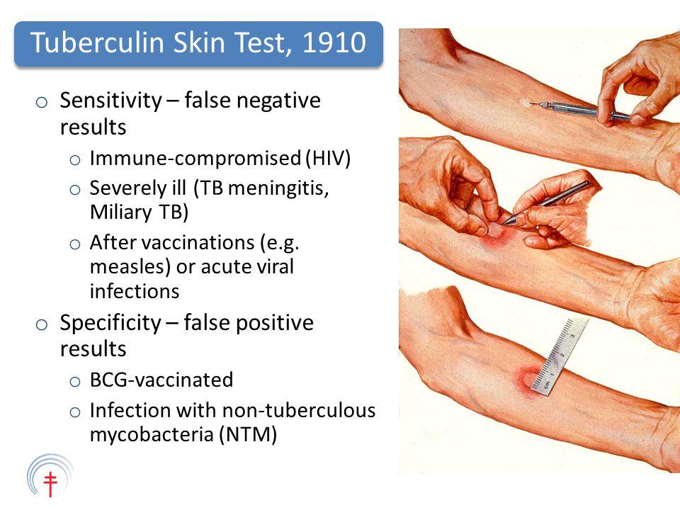 tb skin test results pdf