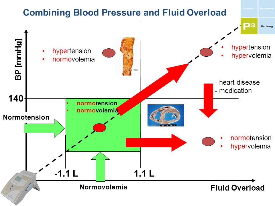 Combining Blood Pressure and Fluid Overload